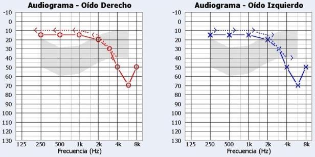 audiometr237a tonal liminar � el rinc211n del audi211logo